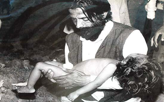 bhopal gas victim child 20091019